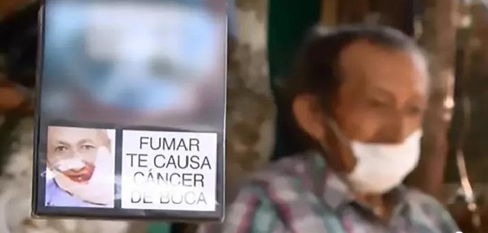تصویر مرد مبتلا به سرطان روی پاکت سیگار بدون اطلاع او خبر ساز شد!