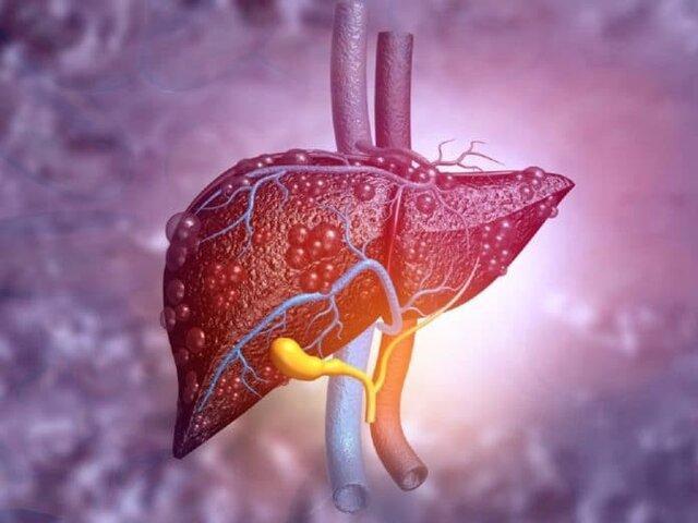 ارتباط بین اختلال در عملکرد کبد و تاثیر آن بر قلب